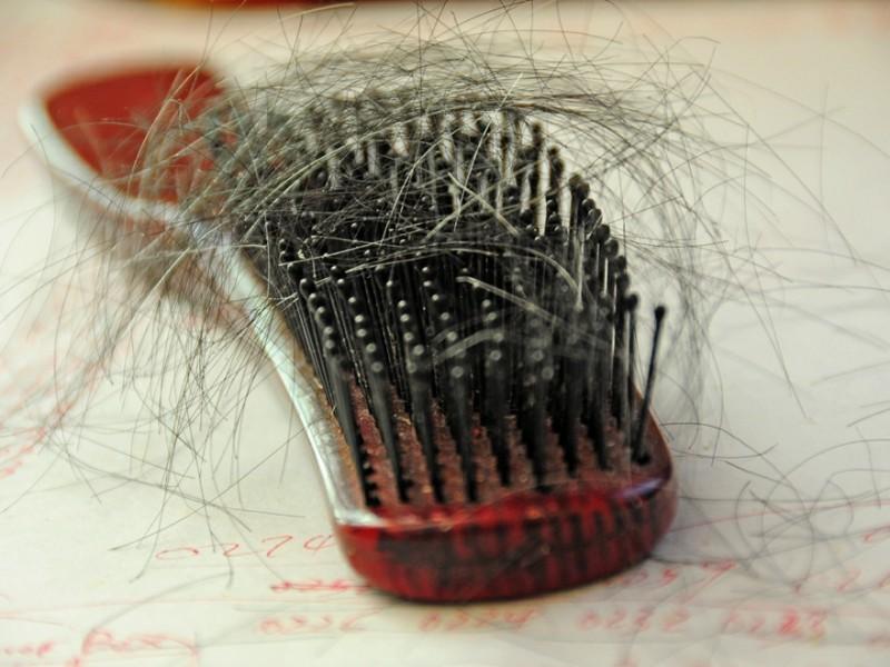 Haarverlies bij mannen